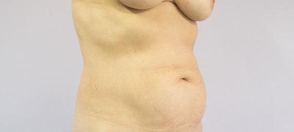 Cicatrices Postquirúrgicas